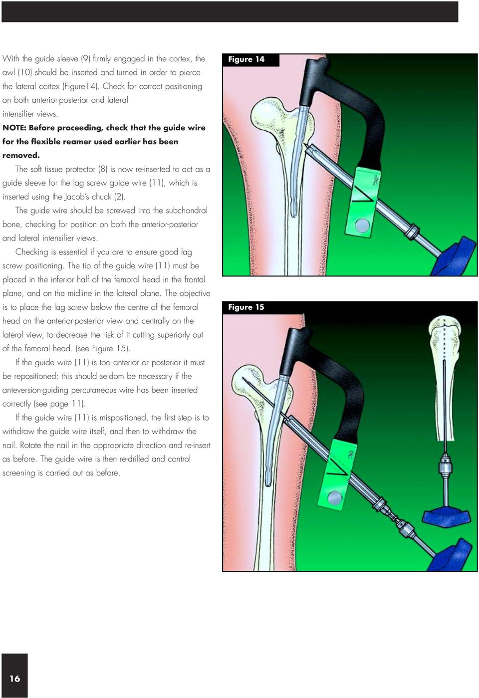 The soft tissue protector (8) is now re-inserted to act as a guide sleeve for the lag screw guide wire (11), which is inserted using the Jacob s chuck (2).