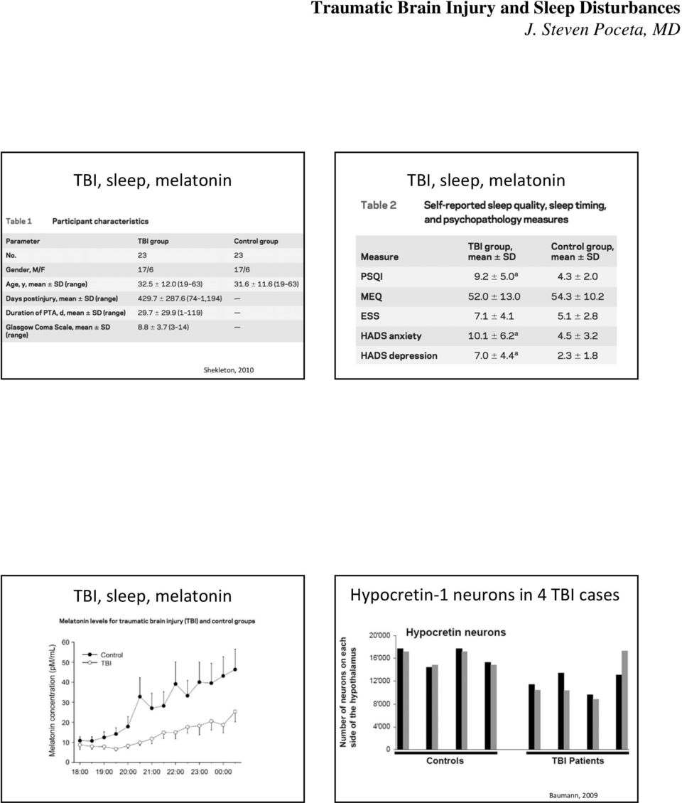 TBI, sleep, melatonin Hypocretin