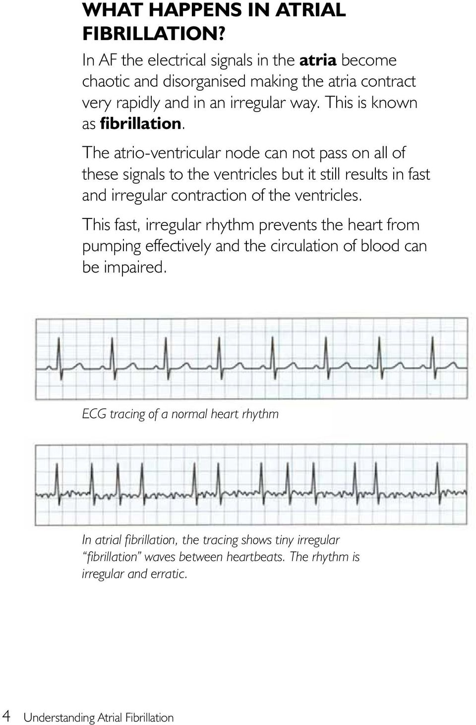 The atrio-ventricular node can not pass on all of these signals to the ventricles but it still results in fast and irregular contraction of the ventricles.