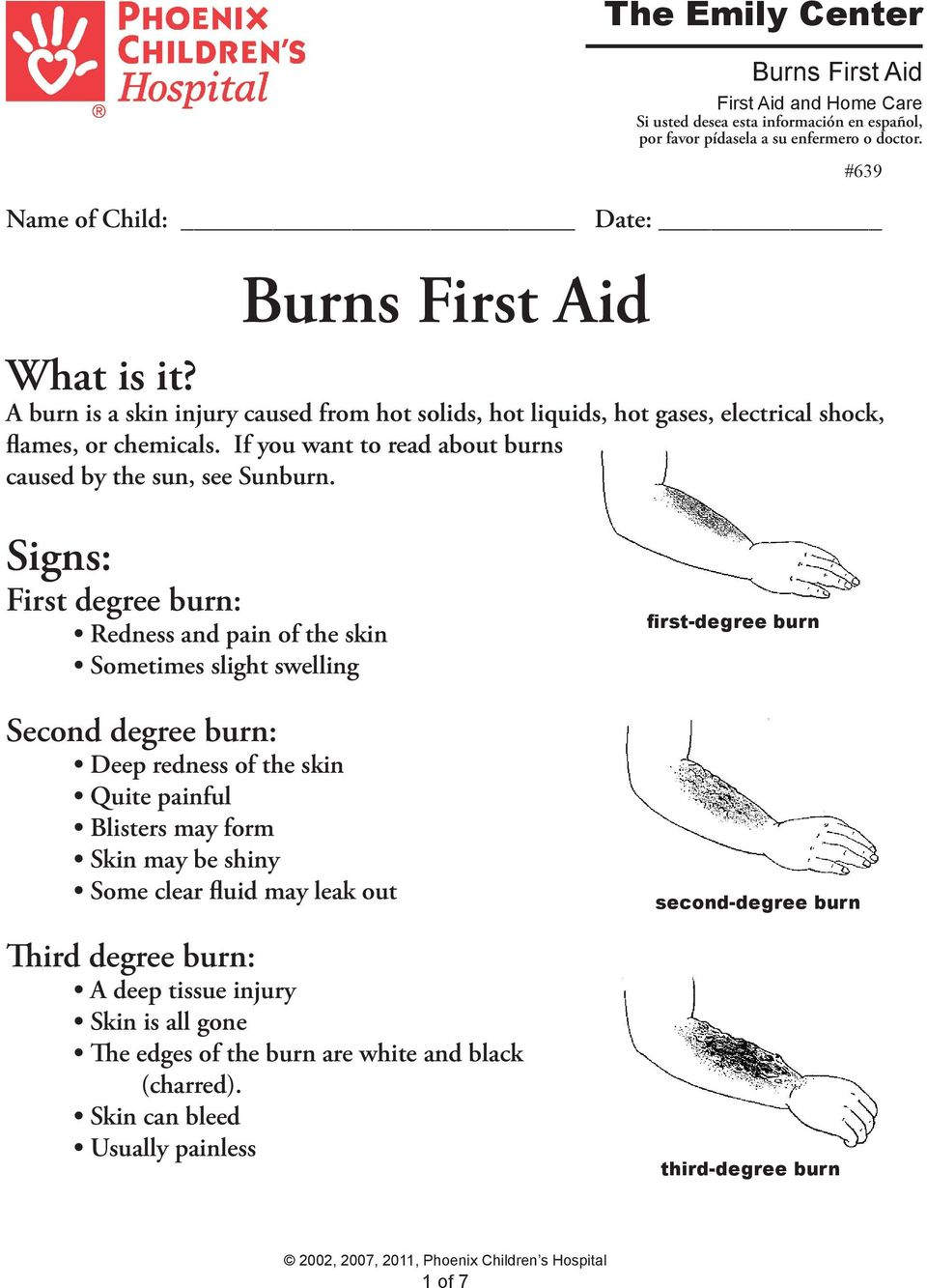 If you want to read about burns caused by the sun, see Sunburn.