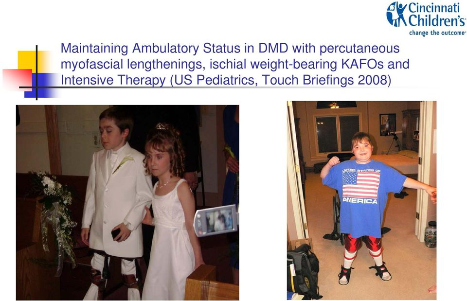 ischial weight-bearing KAFOs and