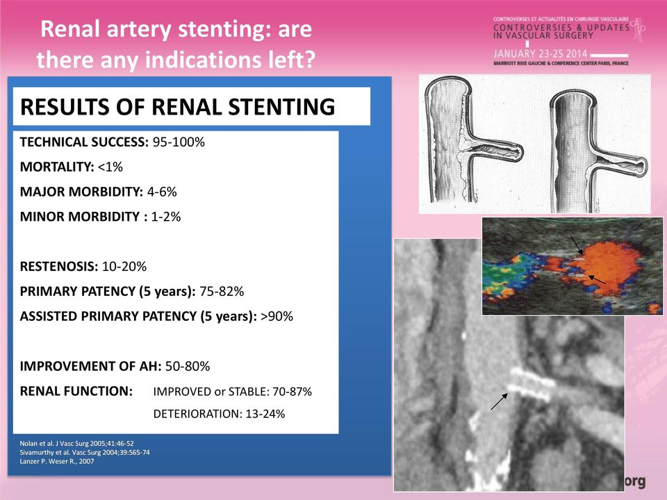 RESTENOSIS: 10-20% PRIMARY Primary PATENCY deployment (5 years): 75-82% of balloon-expandable stents (atherosclerosis).