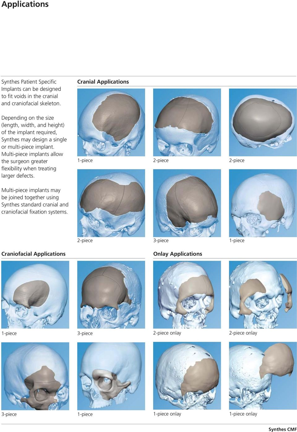 Multi-piece implants allow the surgeon greater flexibility when treating larger defects.
