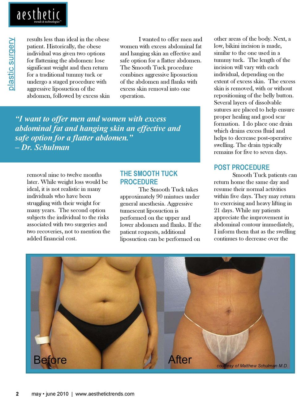 liposuction of the abdomen, followed by excess skin I wanted to offer men and women with excess abdominal fat and hanging skin an effective and safe option for a flatter abdomen.