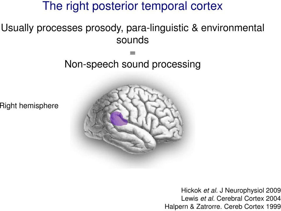 processing Right hemisphere Hickok et al.