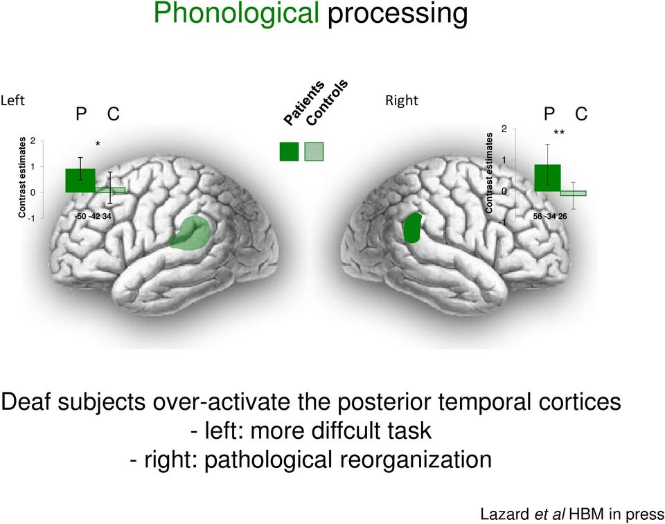 subjects over-activate the posterior temporal cortices - left: more