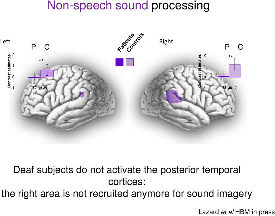 subjects do not activate the posterior temporal cortices: the right