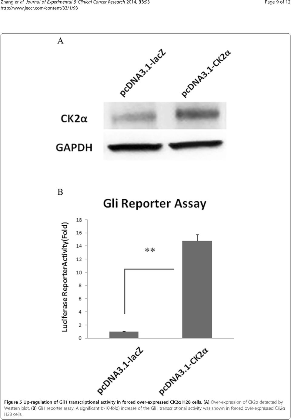 Up-regulation of Gli1 transcriptional activity in forced over-expressed CK2α H28 cells.