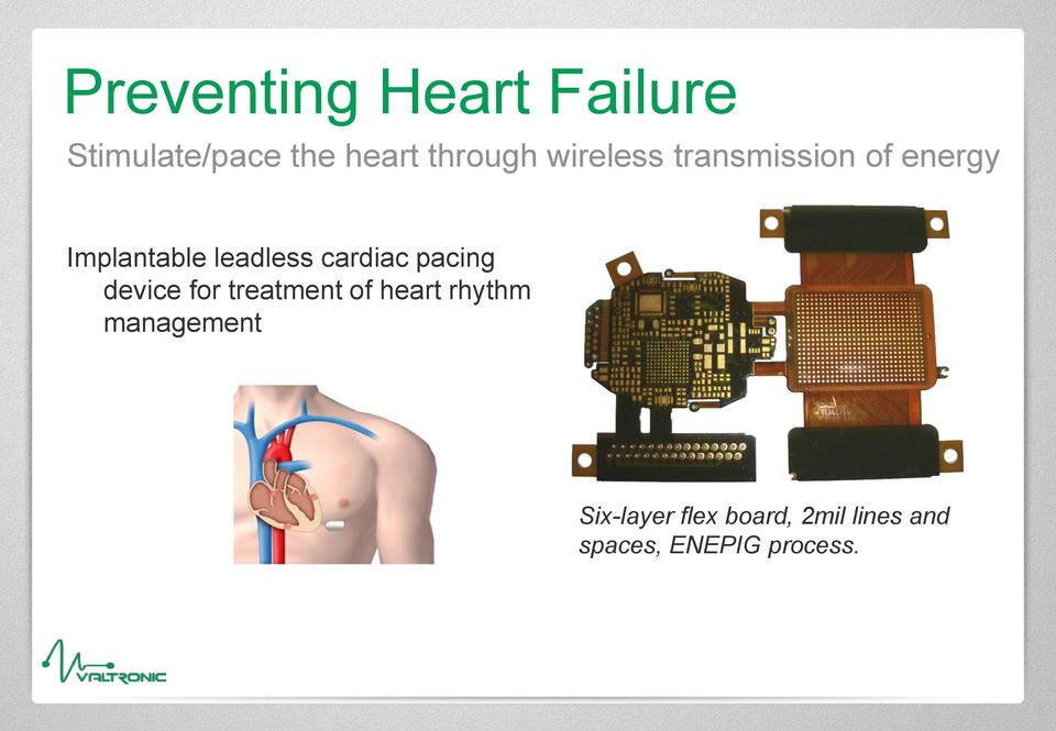 cardiac pacing device for treatment of heart rhythm