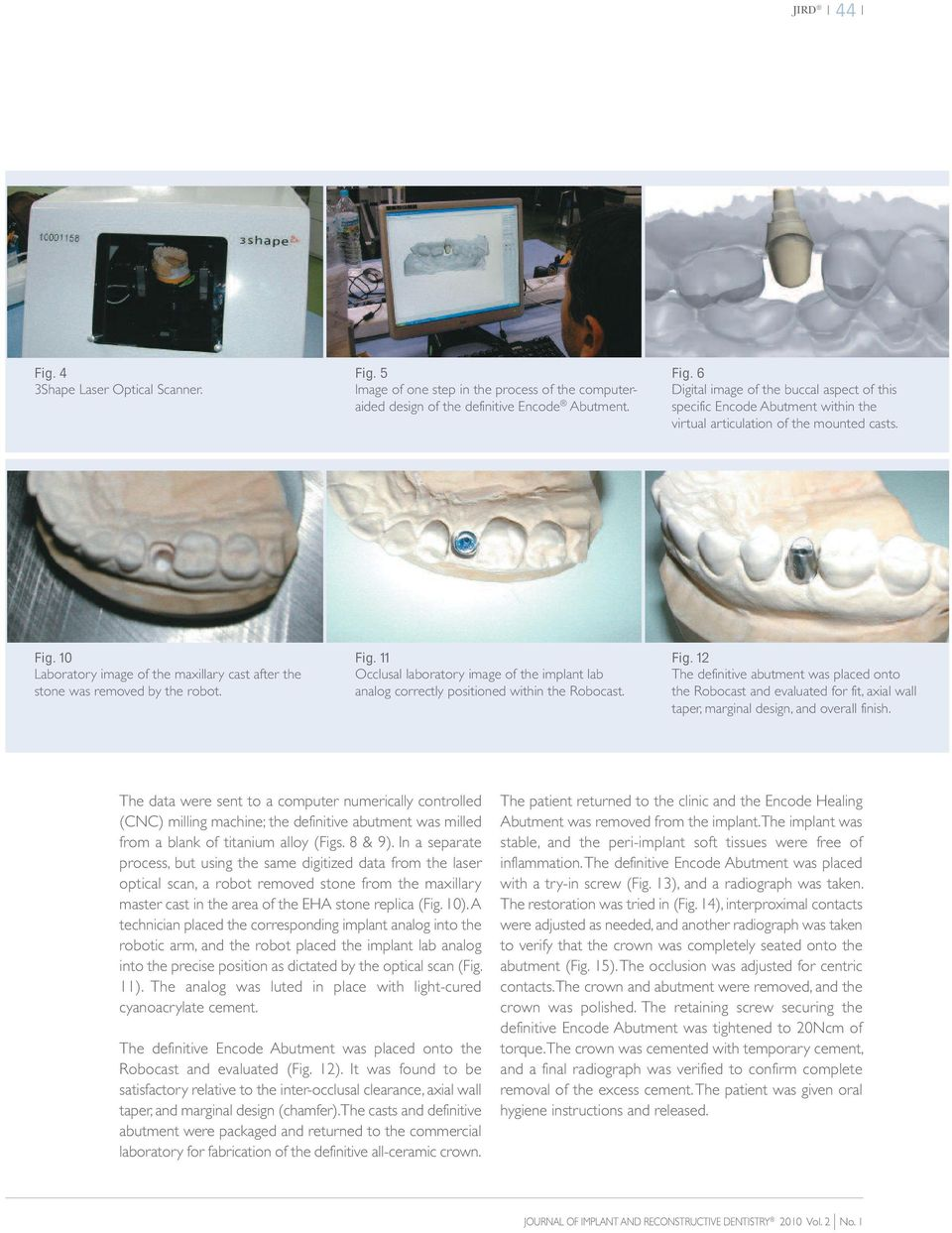 11 Occlusal laboratory image of the implant lab analog correctly positioned within the Robocast. Fig.
