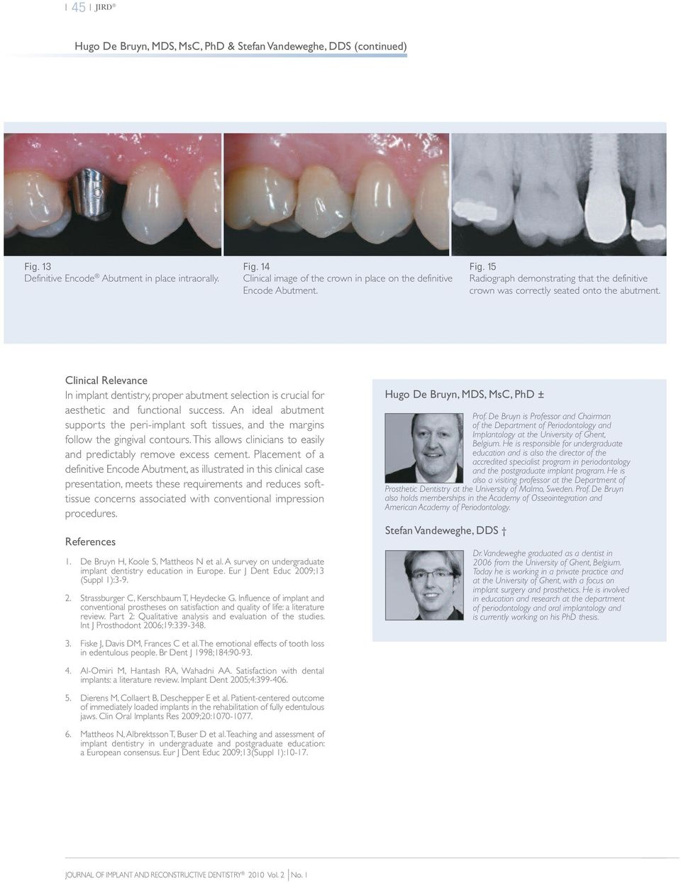 Clinical Relevance In implant dentistry, proper abutment selection is crucial for aesthetic and functional success.