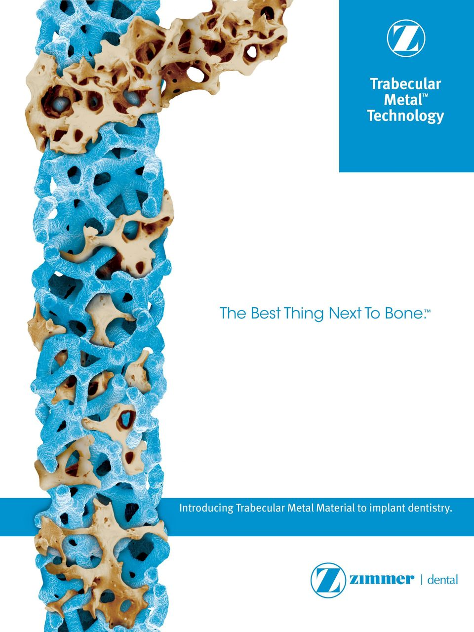 Bone. Introducing Trabecular