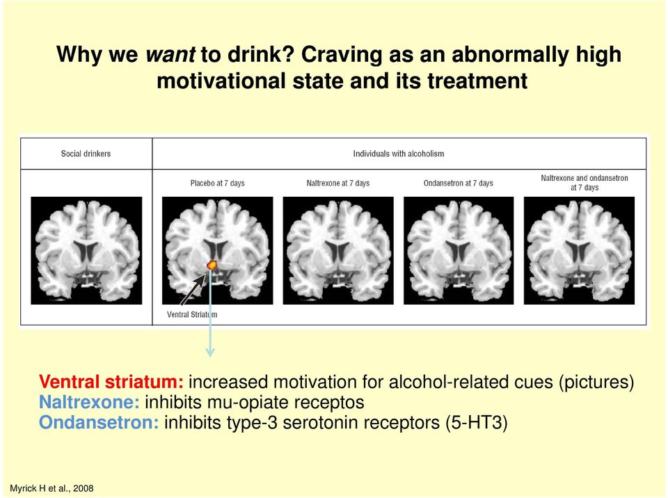 Ventral striatum: increased motivation for alcohol-related cues
