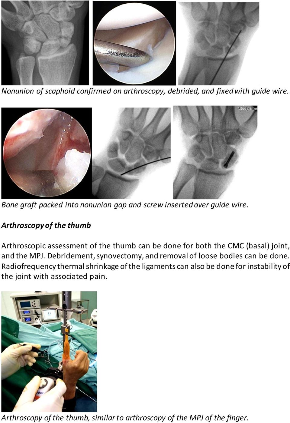 Arthroscopy of the thumb Arthroscopic assessment of the thumb can be done for both the CMC (basal) joint, and the MPJ.