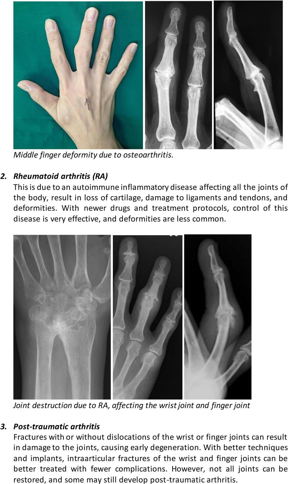 With newer drugs and treatment protocols, control of this disease is very effective, and deformities are less common. Joint destruction due to RA, affecting the wrist joint and finger joint 3.