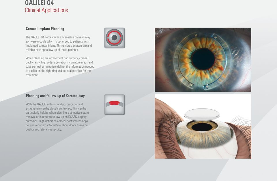 When planning an intracorneal ring surgery, corneal pachymetry, high order aberrations, curvature maps and total corneal astigmatism deliver the information needed to decide on the right ring and