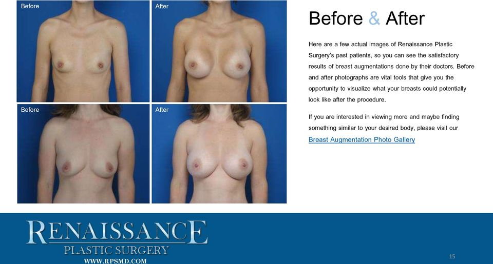 Before and after photographs are vital tools that give you the opportunity to visualize what your breasts could potentially