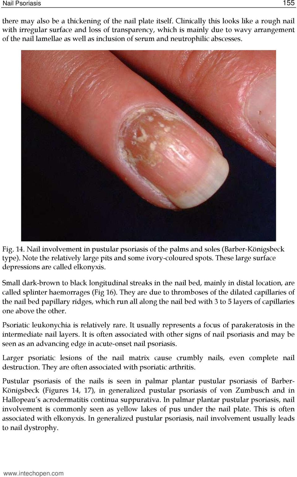 Nail Psoriasis. 1. Introduction - PDF