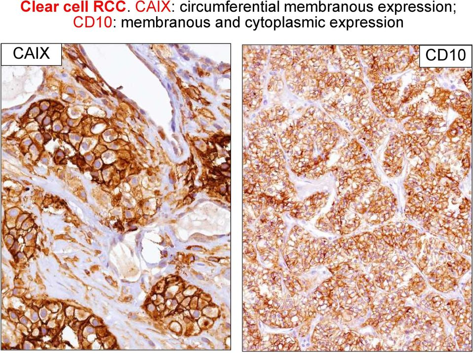 membranous expression; CD10: