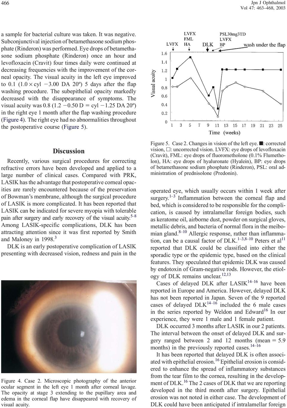 The visual acuity in the left eye improved to 0.1 (1.0 cyl 3.00 DA 20º) 5 days after the flap washing procedure. The subepithelial opacity markedly decreased with the disappearance of symptoms.