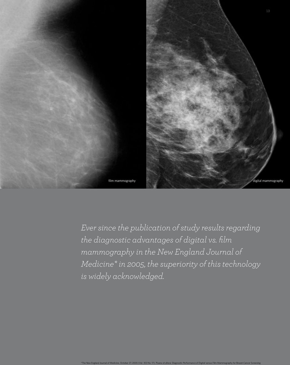 film mammography in the New England Journal of Medicine* in 2005, the superiority of this technology is