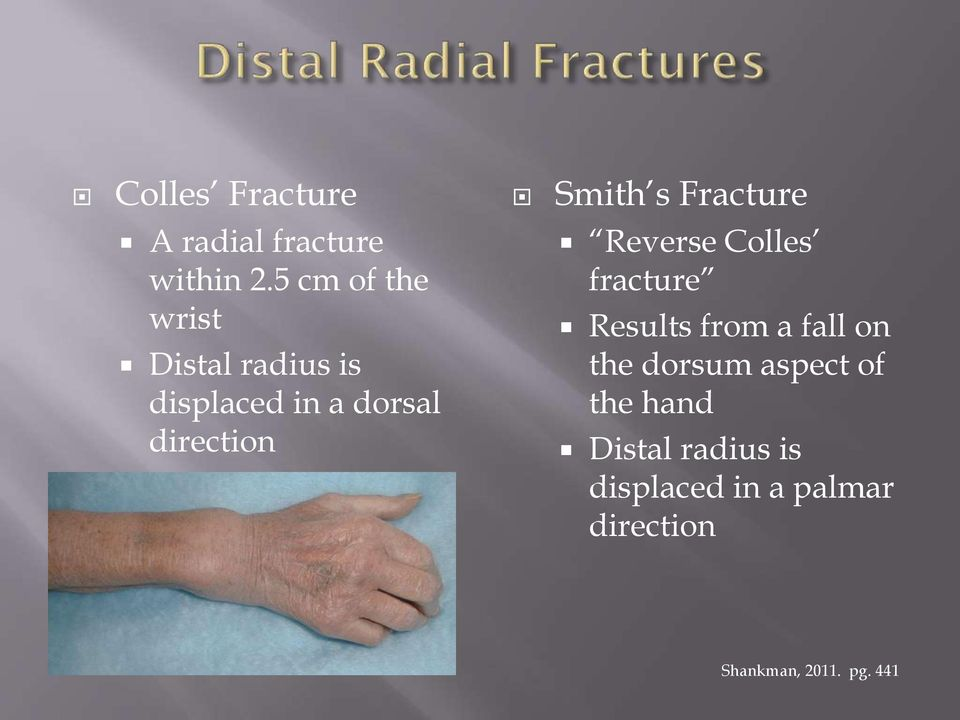 Smith s Fracture Reverse Colles fracture Results from a fall on the
