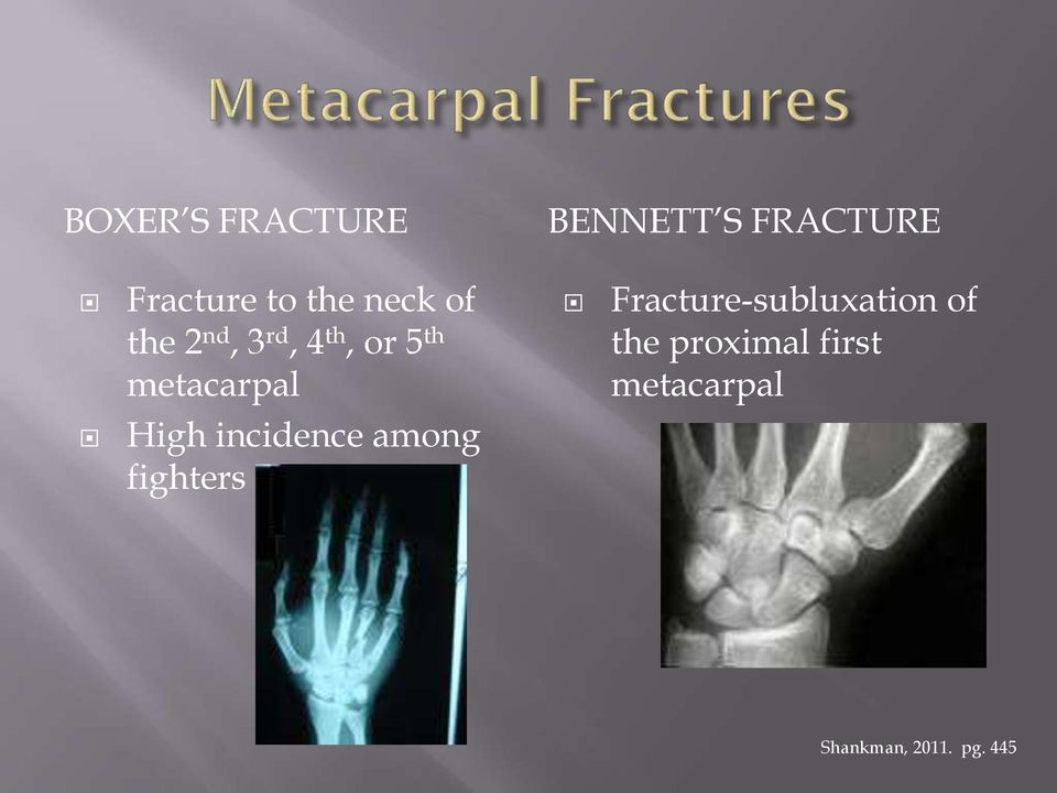 fighters BENNETT S FRACTURE Fracture-subluxation of