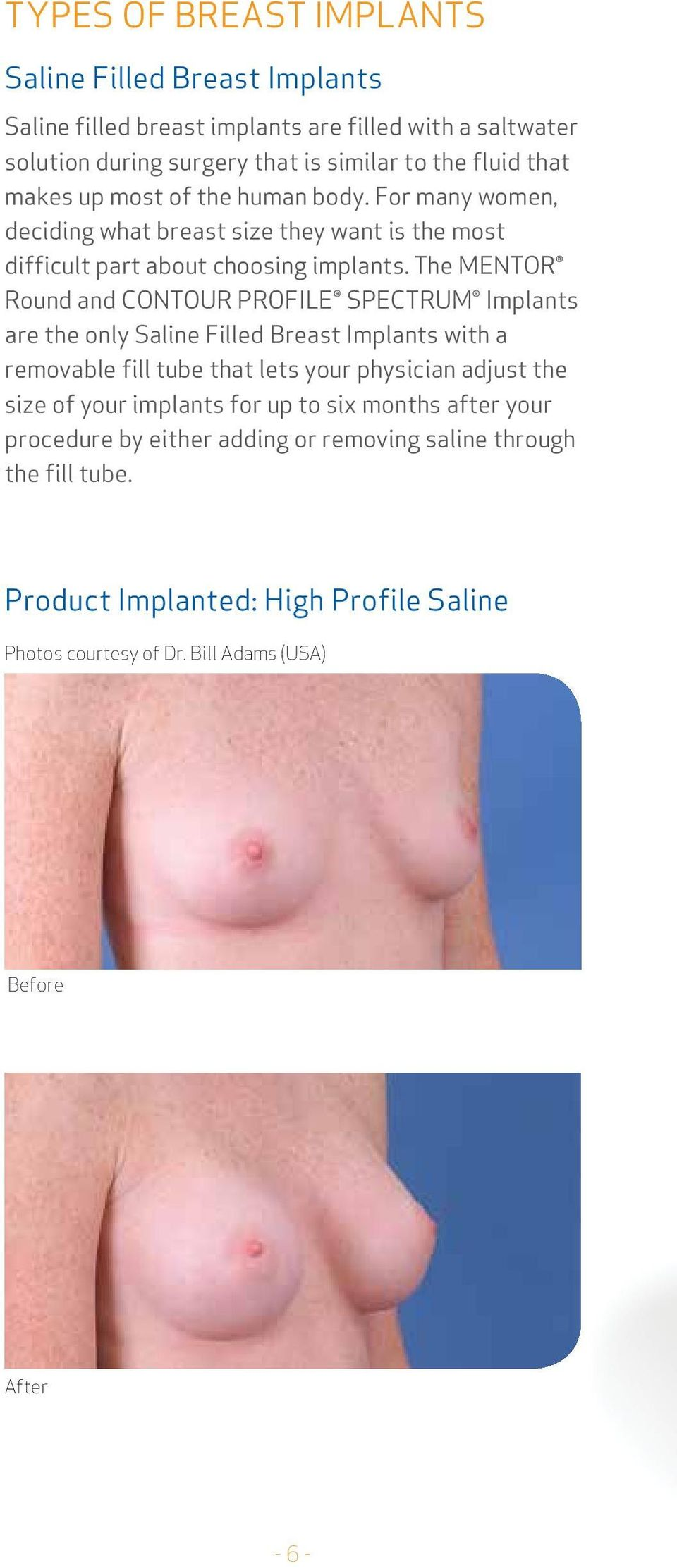 The Mentor Round and Contour Profile Spectrum Implants are the only Saline Filled Breast Implants with a removable fill tube that lets your physician adjust the size of