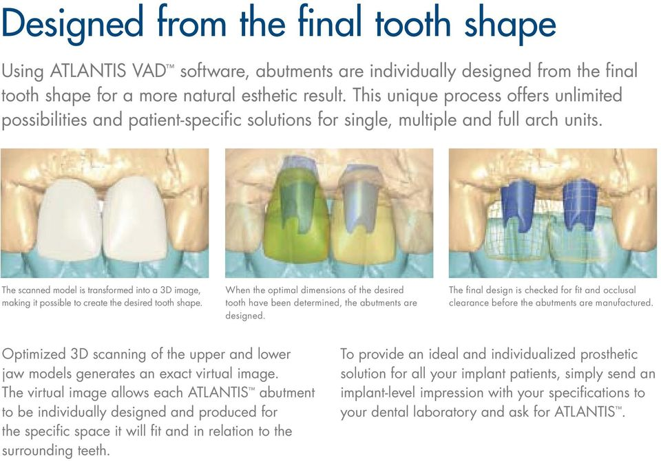 When the optimal dimensions of the desired tooth have been determined, the abutments are designed. The final design is checked for fit and occlusal clearance before the abutments are manufactured.