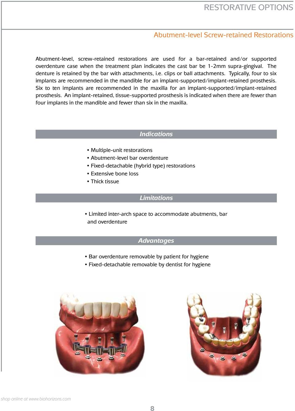 Typically, four to six implants are recommended in the mandible for an implant-supported/implant-retained prosthesis.