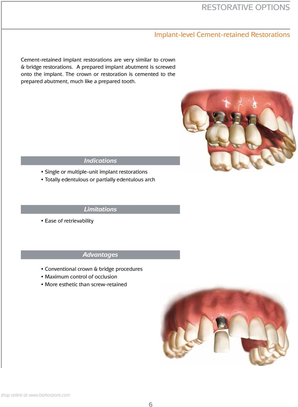 The crown or restoration is cemented to the prepared abutment, much like a prepared tooth.