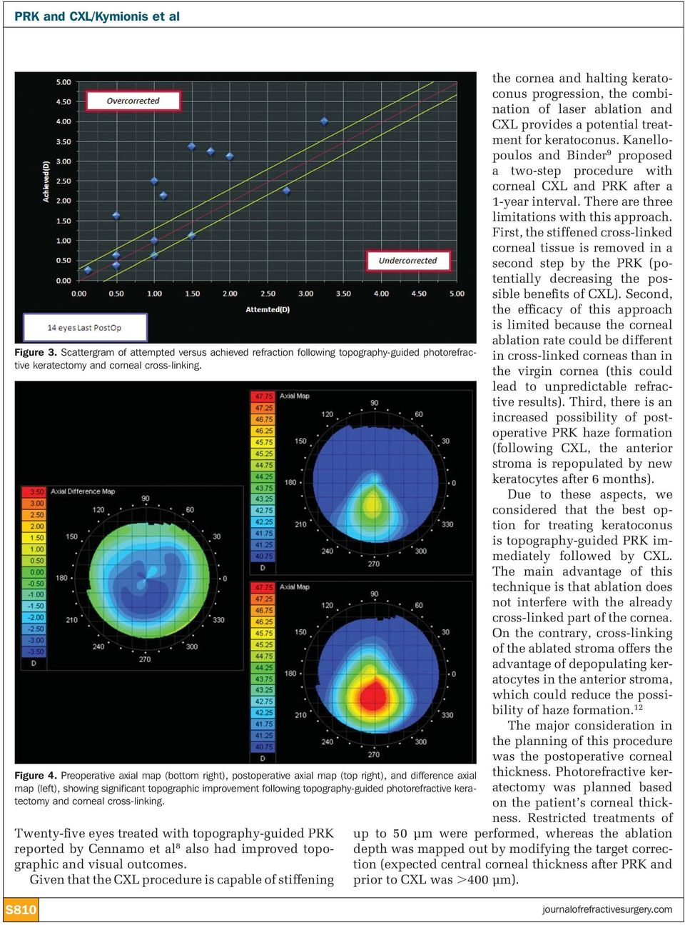 keratectomy and corneal cross-linking. Twenty-five eyes treated with topography-guided PRK reported by Cennamo et al 8 also had improved topographic and visual outcomes.
