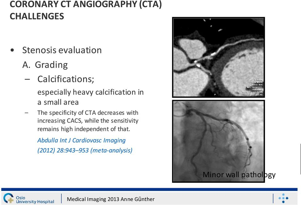 specificity of CTA decreases with increasing CACS, while the sensitivity remains