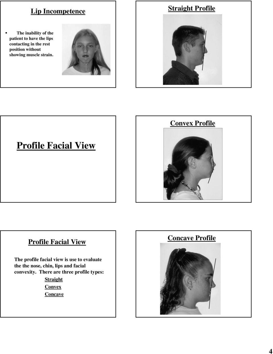Convex Profile Profile Facial View Profile Facial View Concave Profile The profile facial