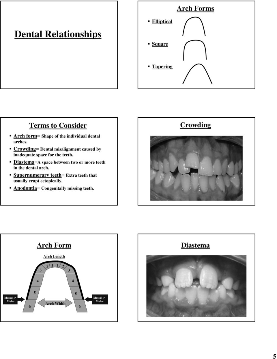 Diastema=A space between two or more teeth in the dental arch.