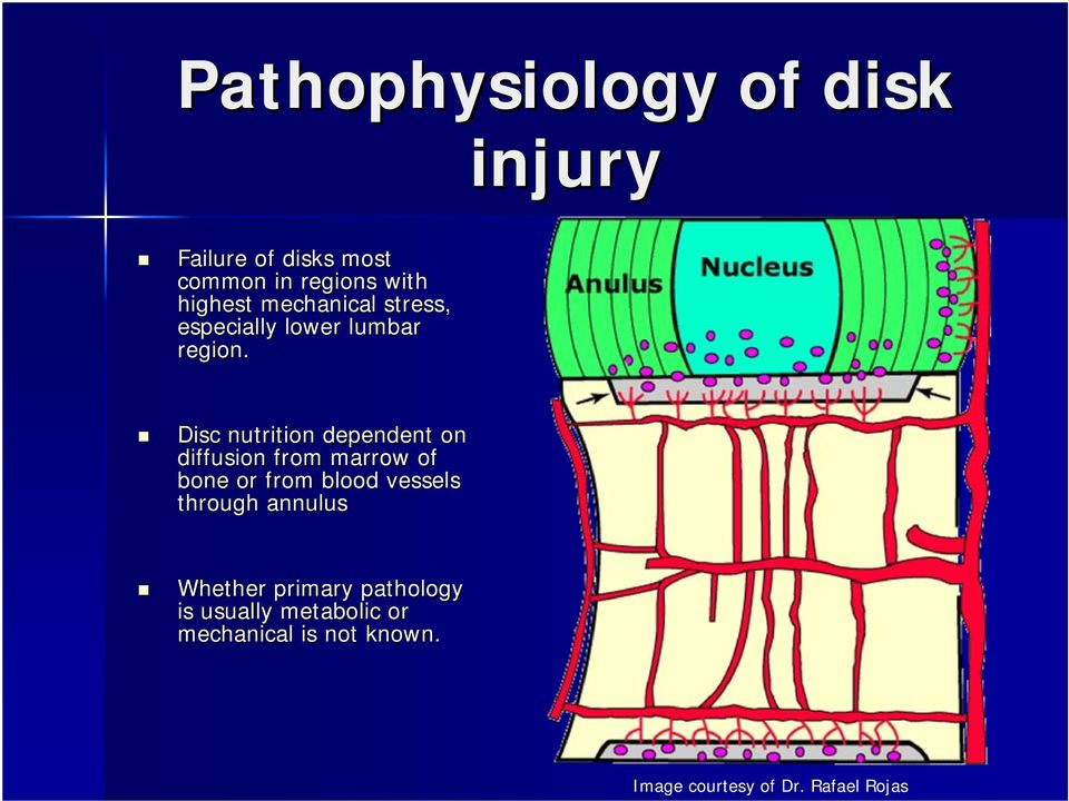 Disc nutrition dependent on diffusion from marrow of bone or from blood vessels