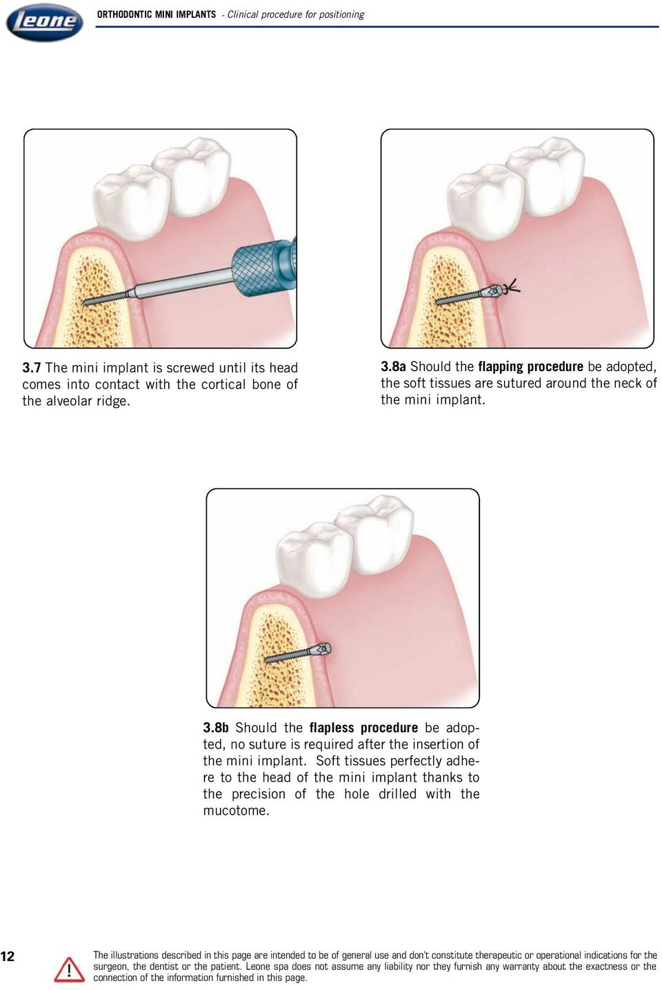 8b Should the flapless procedure be adopted, no suture is required after the insertion of the mini implant.