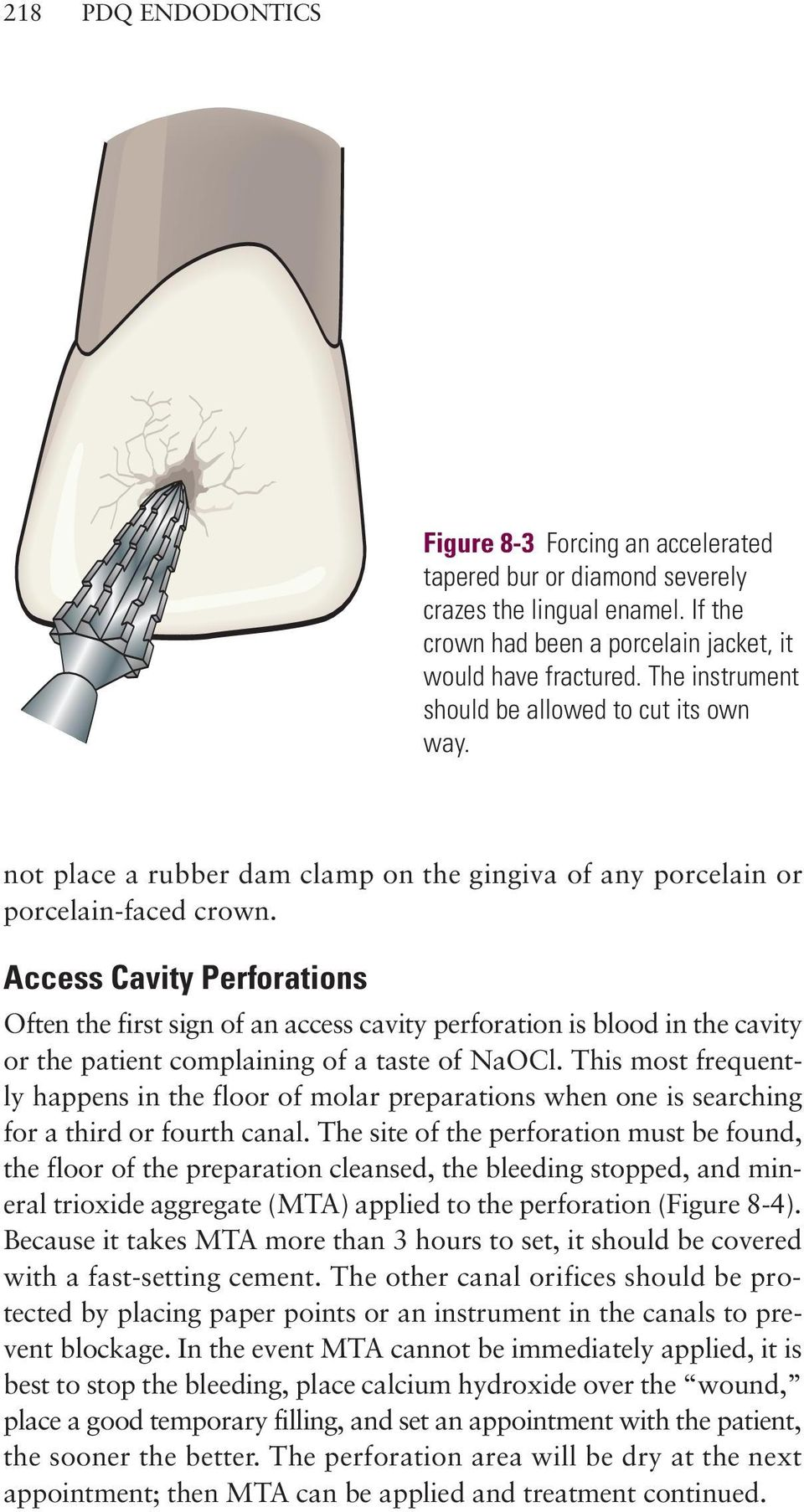 Access Cavity Perforations Often the first sign of an access cavity perforation is blood in the cavity or the patient complaining of a taste of NaOCl.