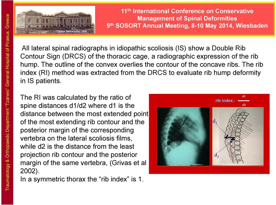 The RI was calculated by the ratio of spine distances d1/d2 where d1 is the distance between the most extended point of the most extending rib contour and the posterior margin of the corresponding