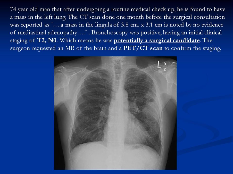 1 cm is noted by no evidence of mediastinal adenopathy.