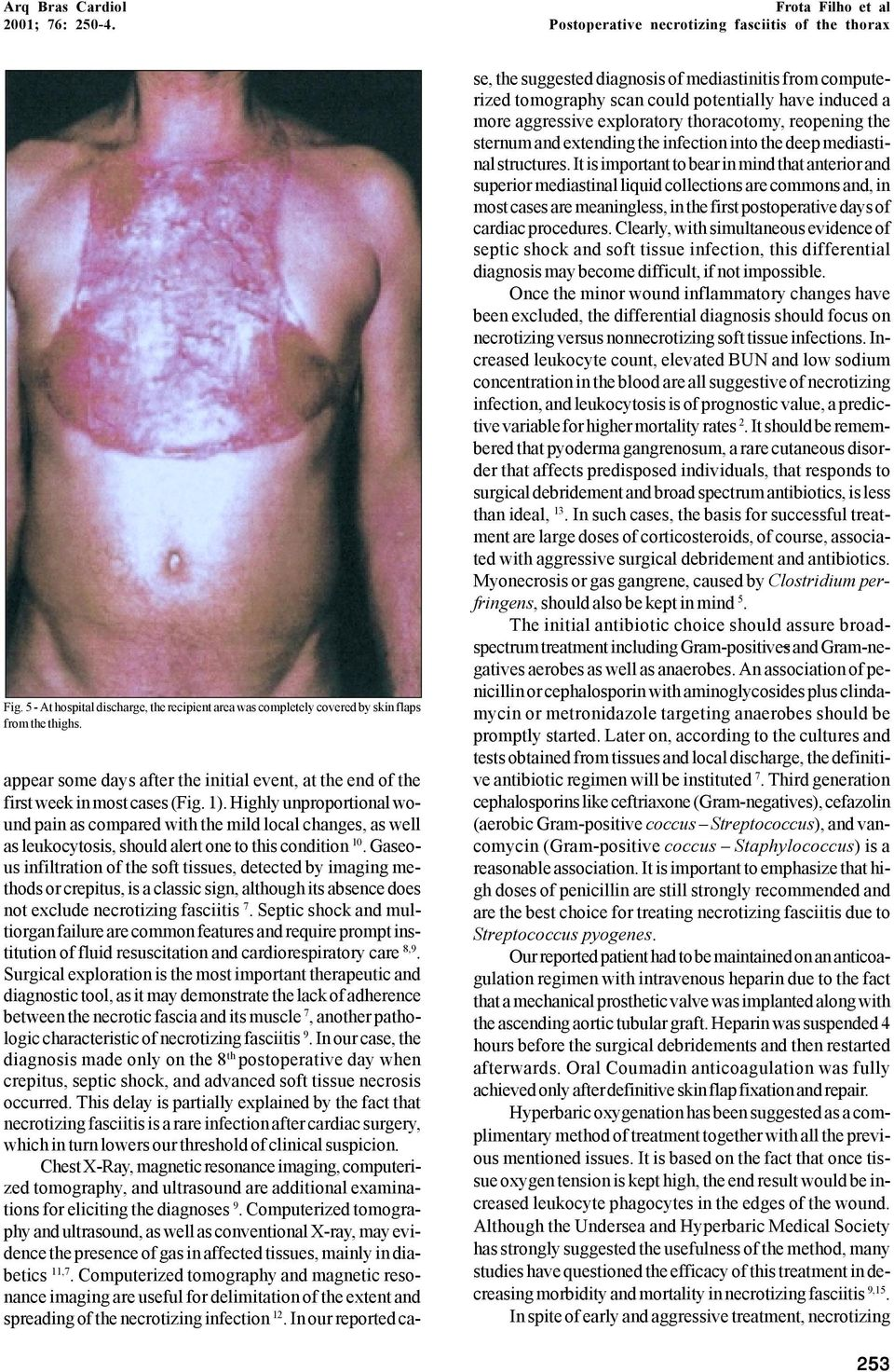 Highly unproportional wound pain as compared with the mild local changes, as well as leukocytosis, should alert one to this condition 10.