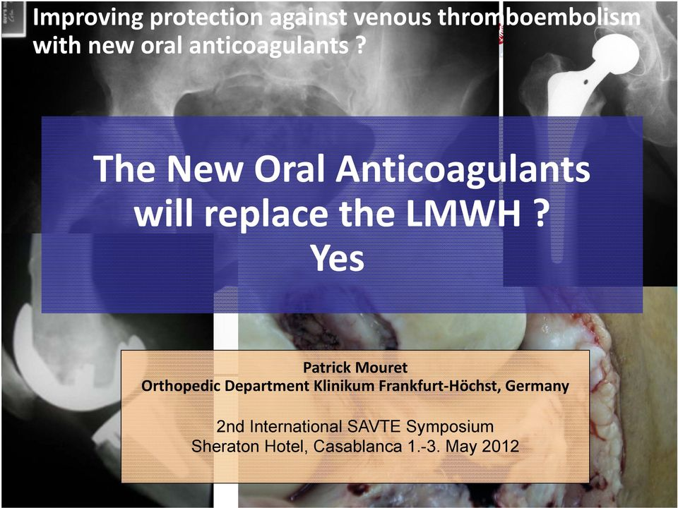 with new oral? anticoagulants? The New Oral Anticoagulants will replace the LMWH?