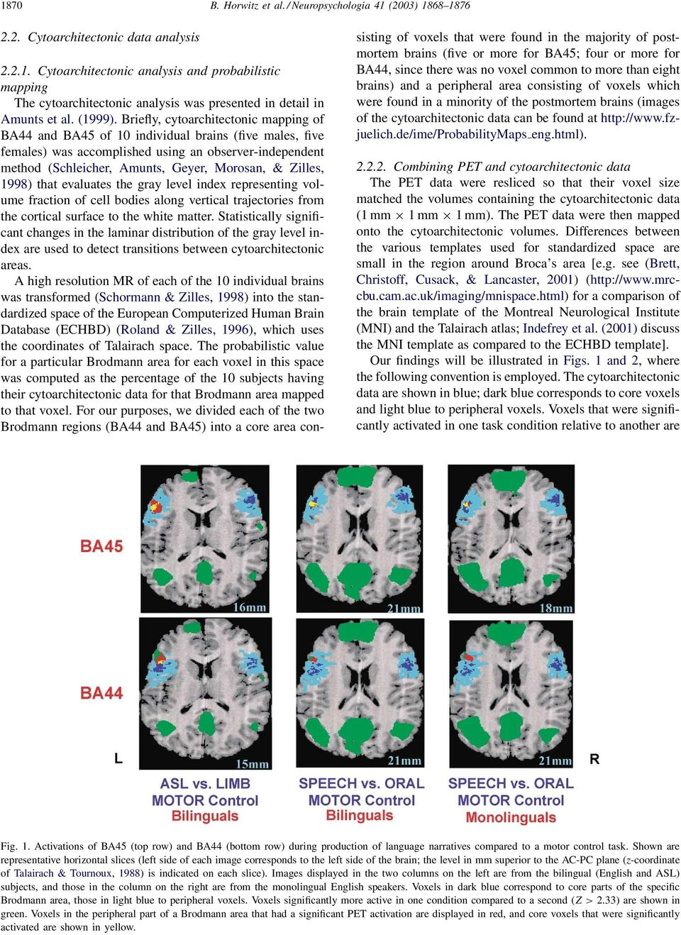 Briefly, cytoarchitectonic mapping of BA44 and BA45 of 10 individual brains (five males, five females) was accomplished using an observer-independent method (Schleicher, Amunts, Geyer, Morosan, &