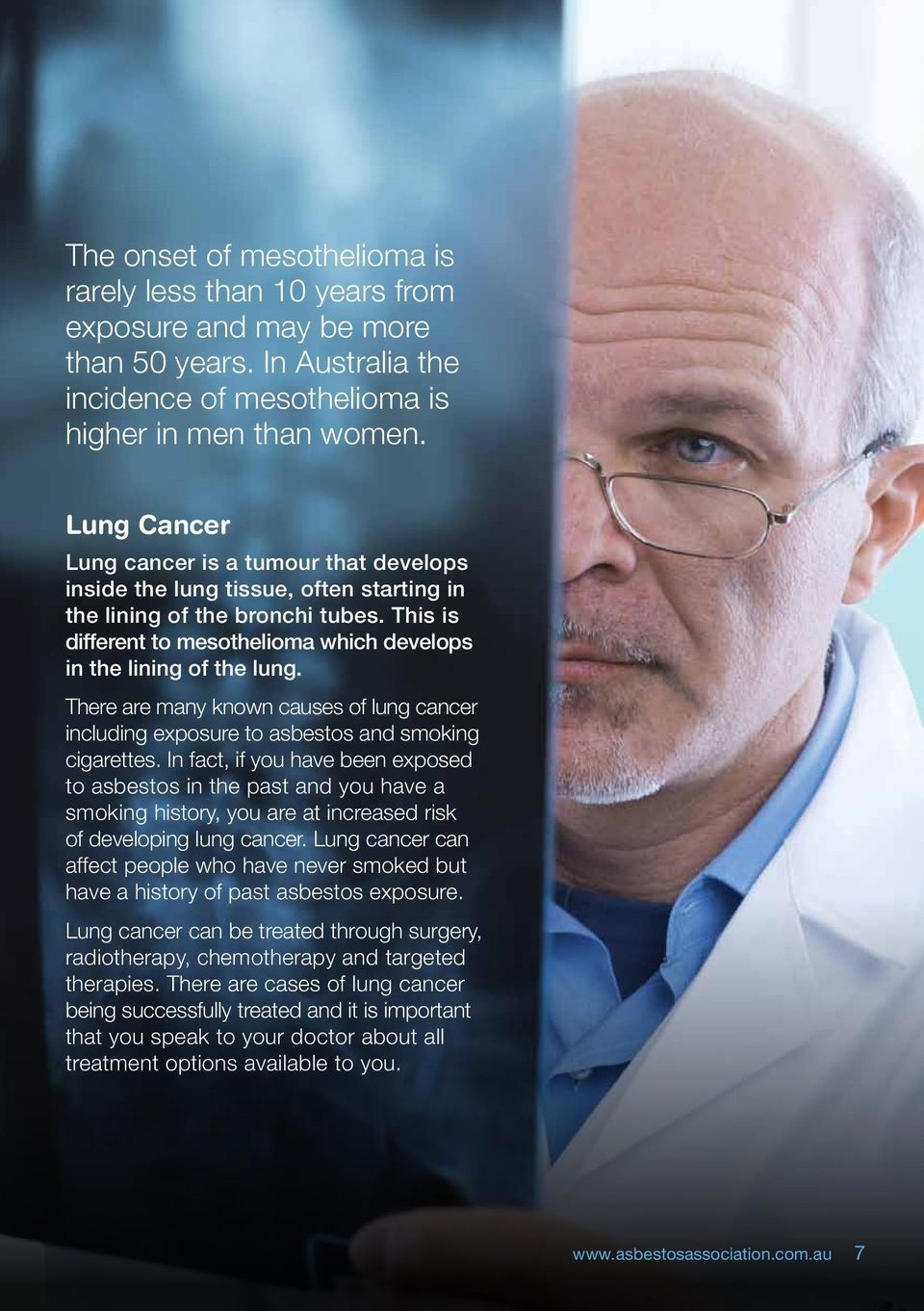 There are many known causes of lung cancer including exposure to asbestos and smoking cigarettes.
