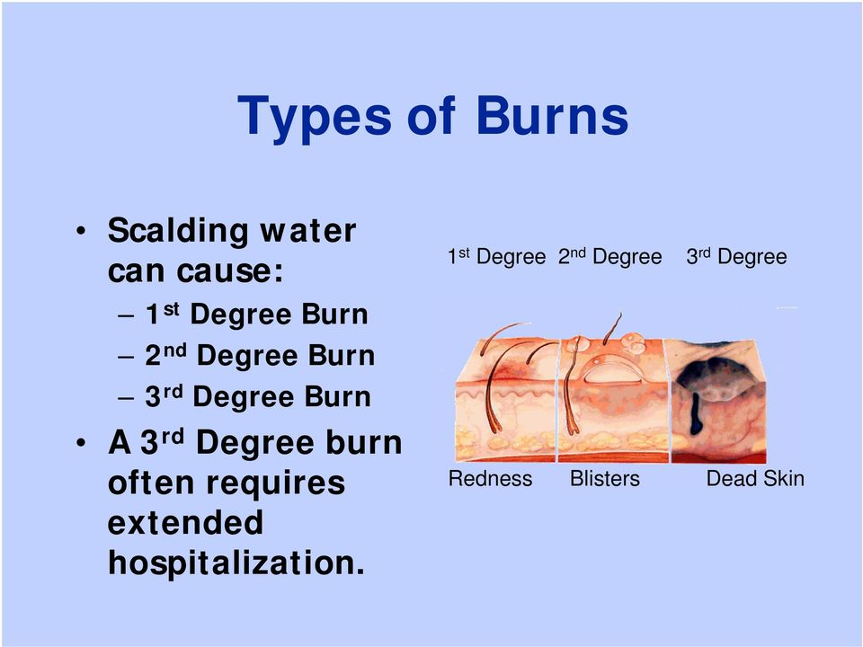 burn often requires extended hospitalization.