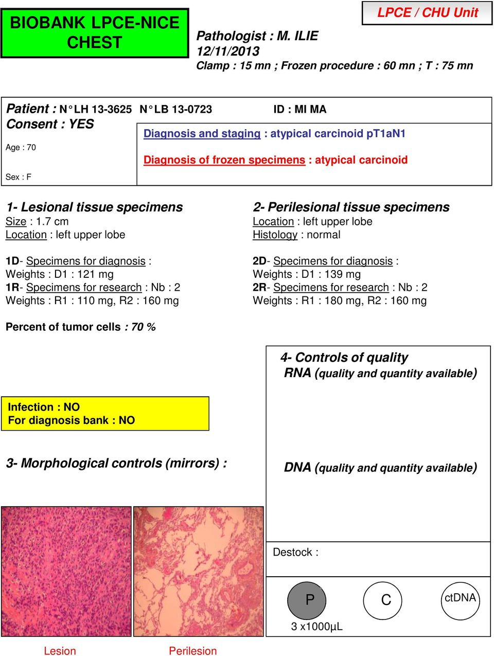 atypical carcinoid pt1an1 Diagnosis of frozen specimens : atypical carcinoid Size : 1.