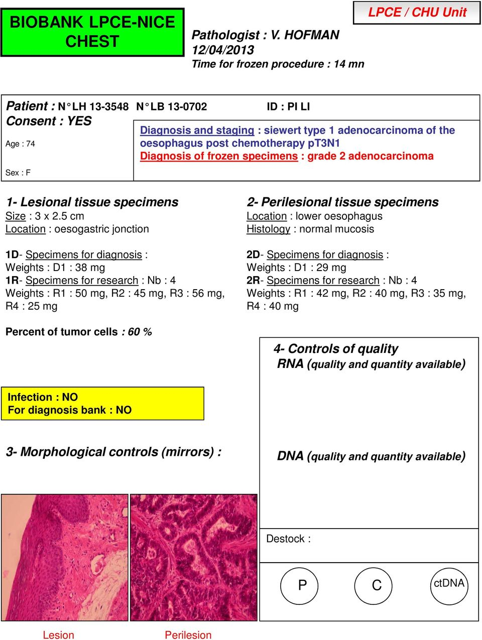 of the oesophagus post chemotherapy pt3n1 Diagnosis of frozen specimens : grade 2 adenocarcinoma Size : 3 x 2.