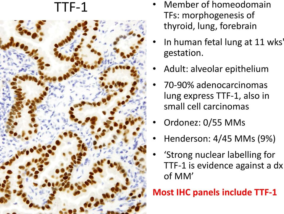 Adult: alveolar epithelium 70-90% adenocarcinomas lung express TTF-1, also in small cell