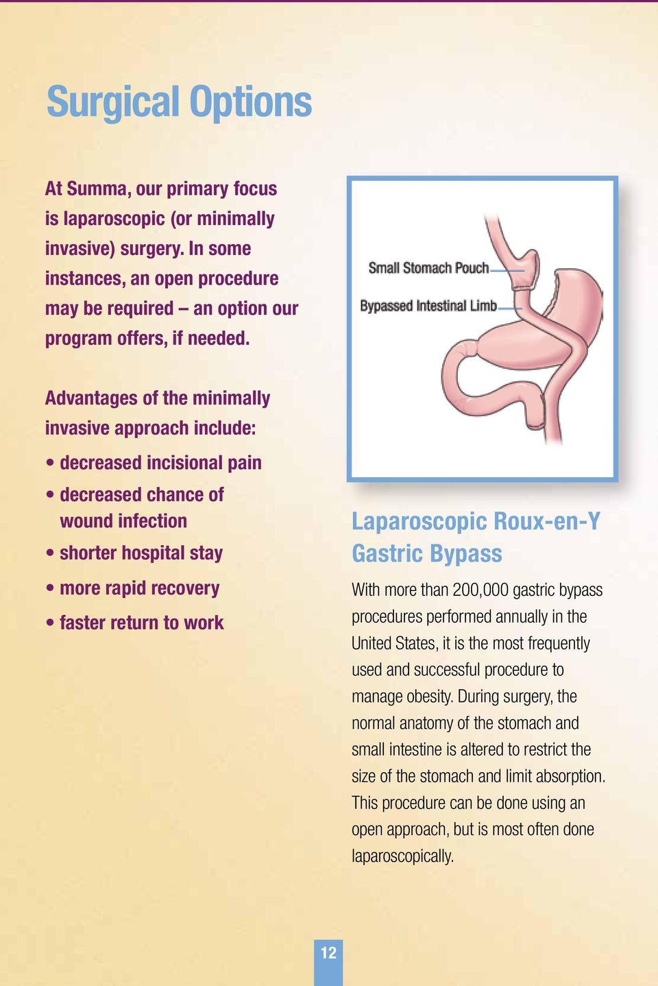 Roux-en-Y Gastric Bypass With more than 200,000 gastric bypass procedures performed annually in the United States, it is the most frequently used and successful procedure to manage obesity.