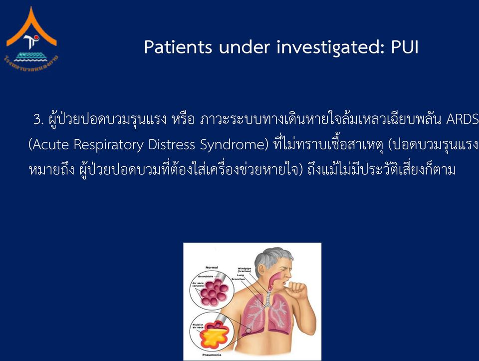 ARDS (Acute Respiratory Distress Syndrome) ท ไม ทราบเช อสาเหต